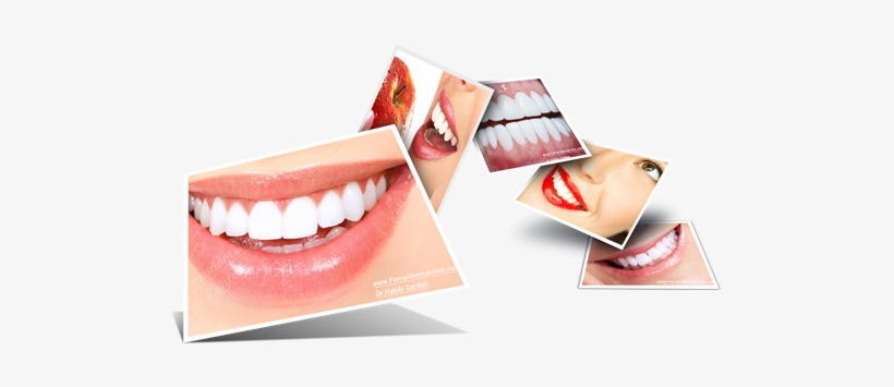 Habib Zarifeh Clinic Our Elite Team Of Doctors Is Dental Smile Images Png Png Image Transparent Png Free Download On Seekpng