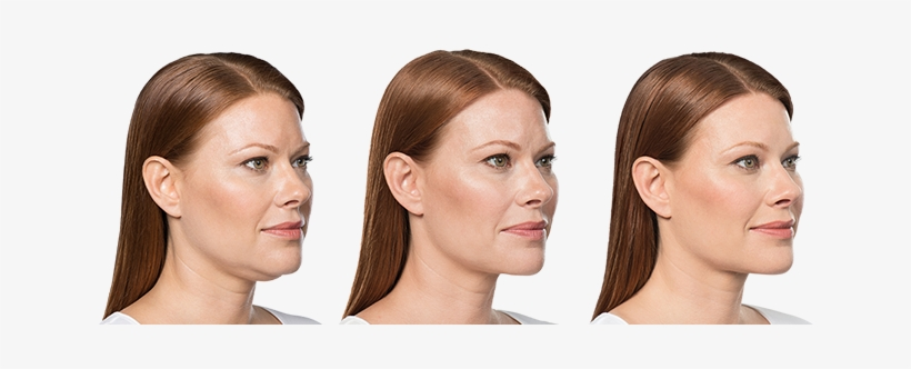 Weight Before Treatment Chin Weight Loss Before And After Side Profile Png Image Transparent Png Free Download On Seekpng