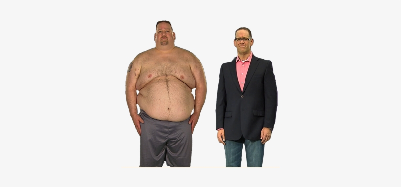 Extreme Weight Loss Is Looking For Candidates In Dallas