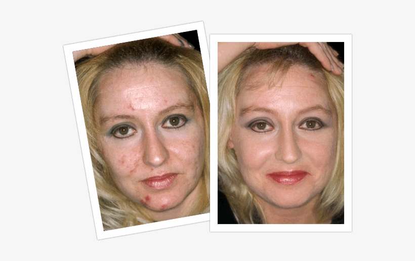Adult Acne Before And After Laser Treatment Laser Treatment For Acne Scars Uk Png Image Transparent Png Free Download On Seekpng